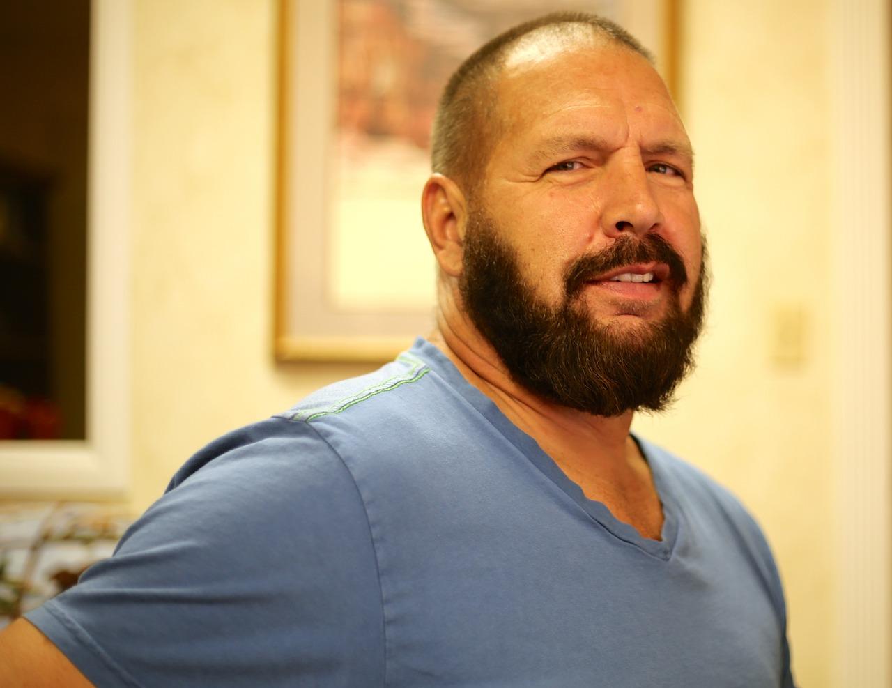 Voller Bart dank Barttransplantation mit Eigenhaar